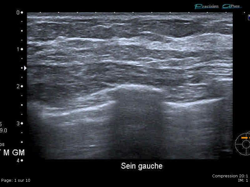 Echographie des seins paris la défense