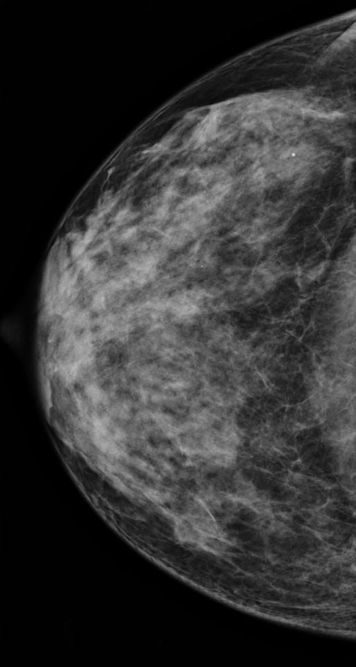 Mammographie paris la défense